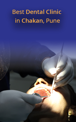 Best Dentist and Dental Clinic in Chakan, Pune
