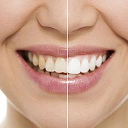 Bleaching - Dr. Raje's Dental Clinic & Implant Center, Chakan, Pune