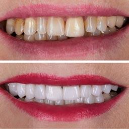 Cosmetics & Aesthetics - Dr. Raje's Dental Clinic & Implant Center, Chakan, Pune