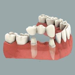 Crown & Bridge - Dr. Raje's Dental Clinic & Implant Center, Chakan, Pune