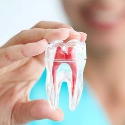 Endodontic - Dr. Raje's Dental Clinic & Implant Center, Chakan, Pune